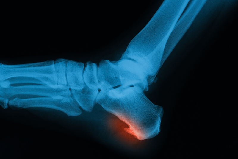 Picture of a heel spur